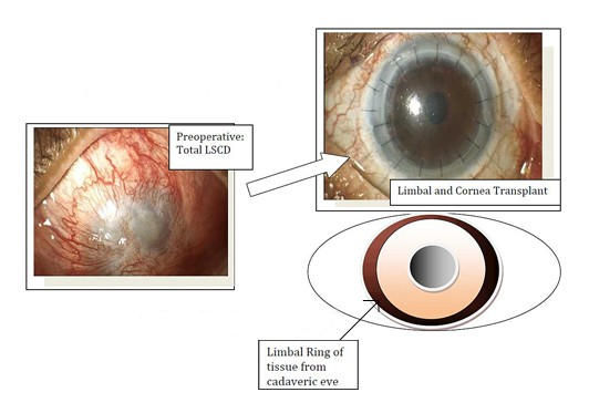 eye transplantation wikipedia
